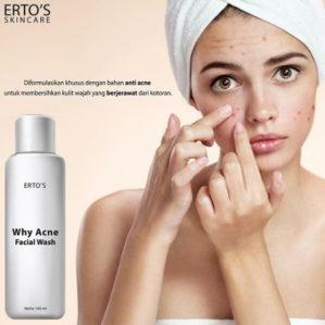 Ertos Why Acne Facial Wash Original BPOM